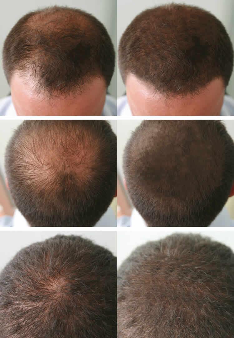 Hair Spa Treatment In Hindi