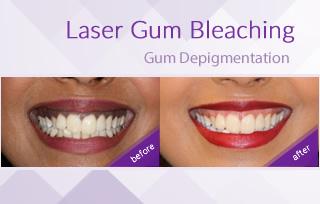 1494169802laser_gum_bleaching_smile_studio_dental_bahrain.jpg