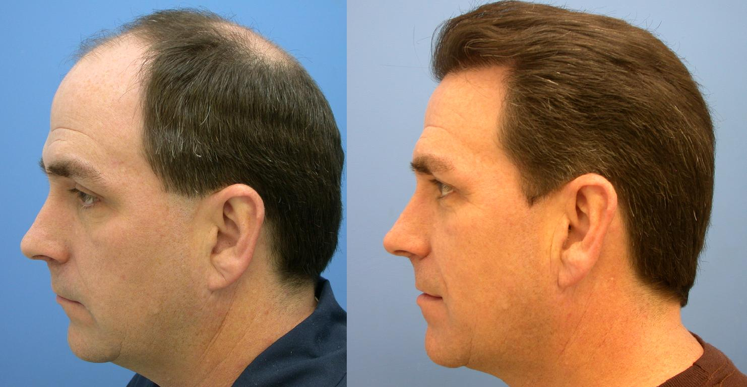 Image result for Top Hair Transplant