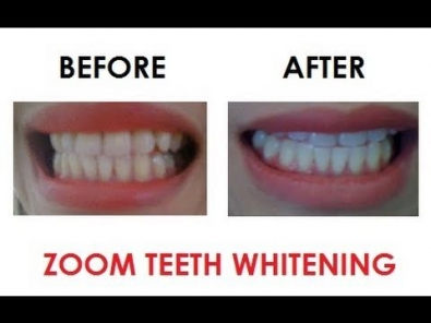 1494169348zoom_4_home_whitening_smile_studio_bahrain.jpg